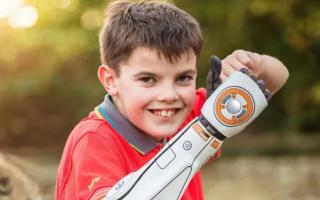 Open Bionics kreira 3D štampane bioničke ruke